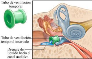 drenaje de los oídos en niños