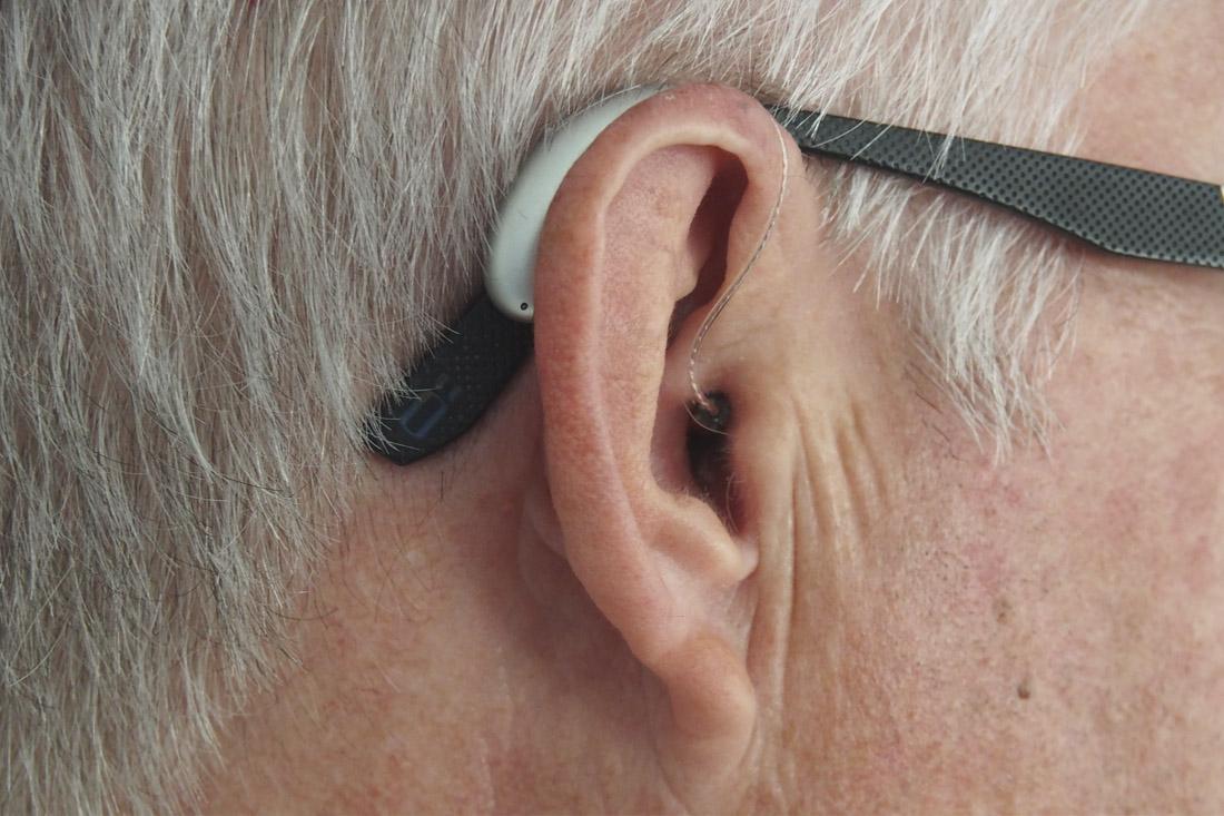 hipoacusia en un oido
